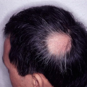 varigos-images-alopecia