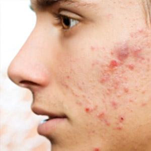 varigos-images-acne